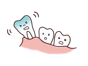 抜ける奥歯
