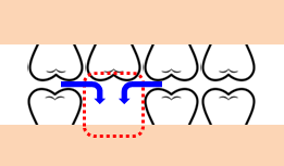 奥歯のスペースが不便