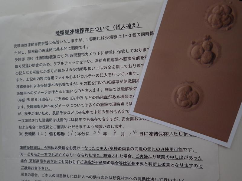 f:id:mens_ninkatsu:20160715094301j:plain