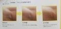ディフェンセラ肌変化ビフォアフ比較