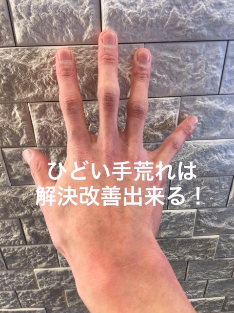 f:id:menzusettoribiyousi:20190312163125j:plain