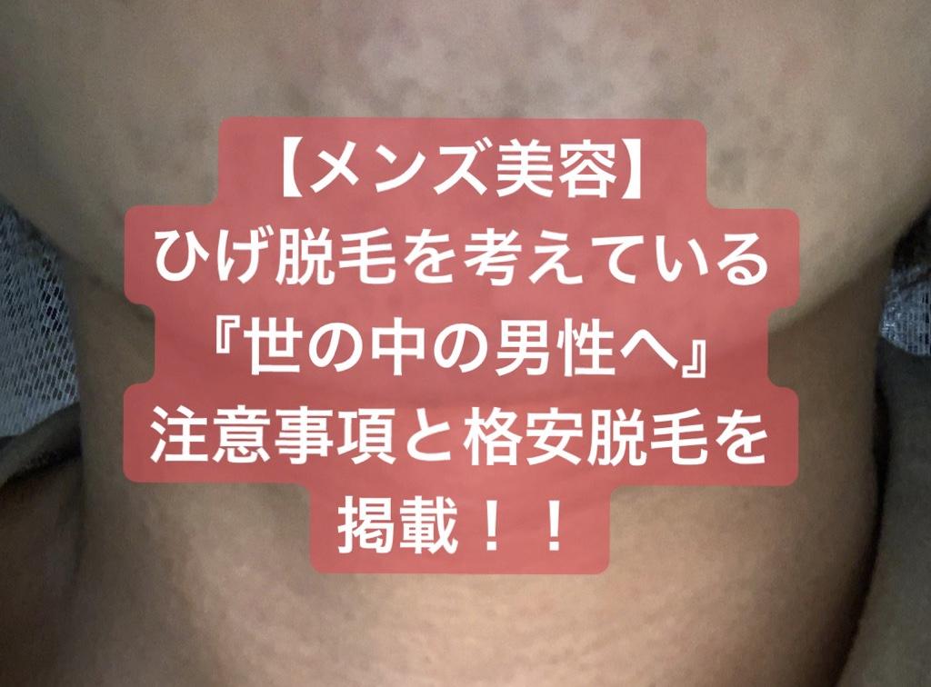 f:id:menzusettoribiyousi:20191001015524j:plain