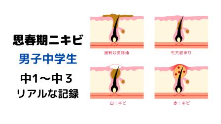f:id:merumamax:20210718105835p:plain
