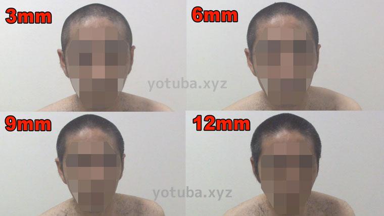坊主刈り12mm~3mm顔側