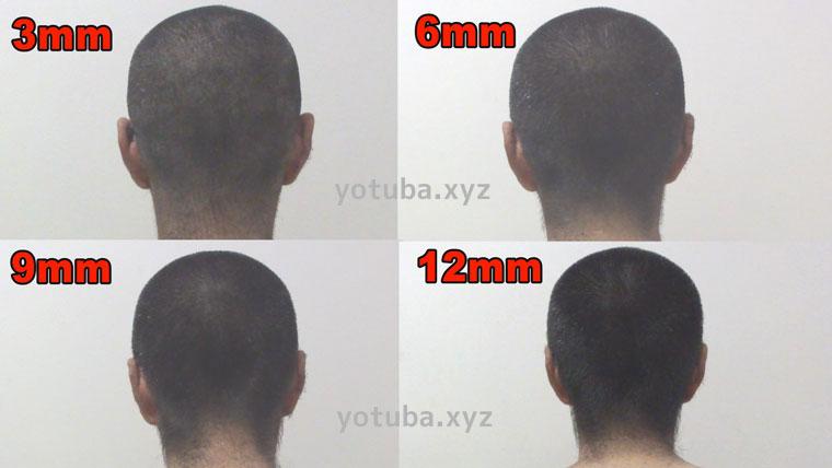 坊主頭12mm-3mm後頭部側