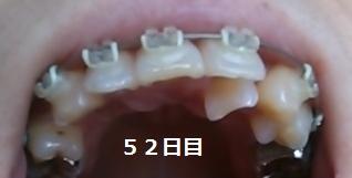 f:id:mi-happy-tanosii:20170518003819j:plain