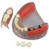 歯列模型 部分入れ歯 VS. インプラント ブリッジ 着脱可 透明模型 66