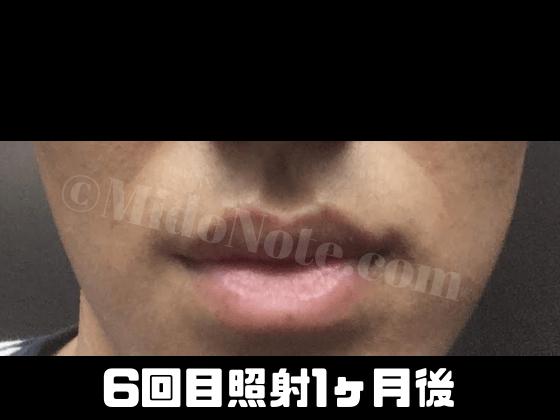 f:id:midonon:20181209151058p:plain