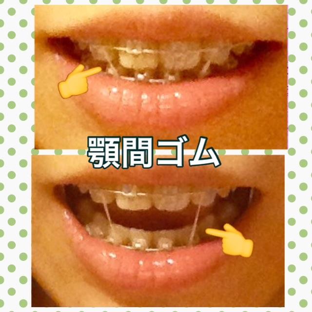f:id:midori32:20150703001451j:plain
