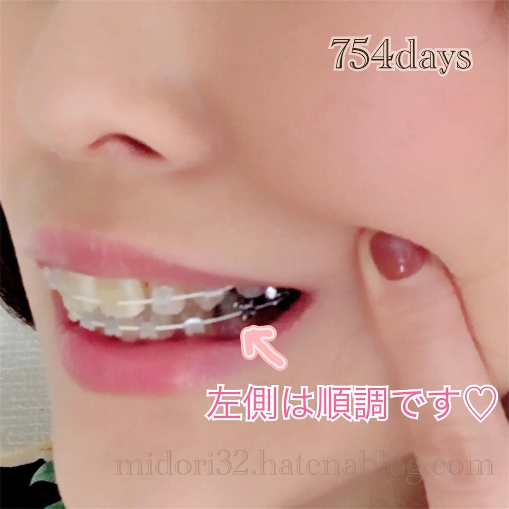 f:id:midori32:20170214085629j:image