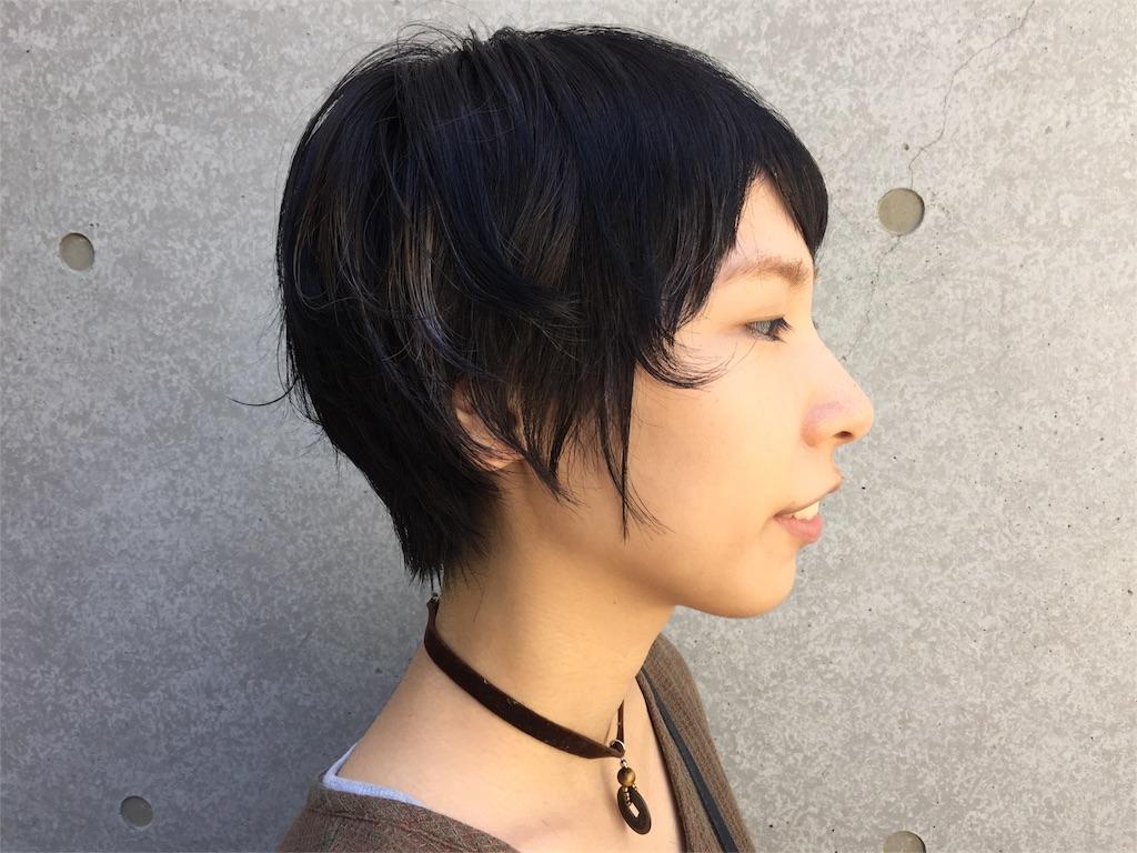 f:id:midori_niki:20160823192341j:image