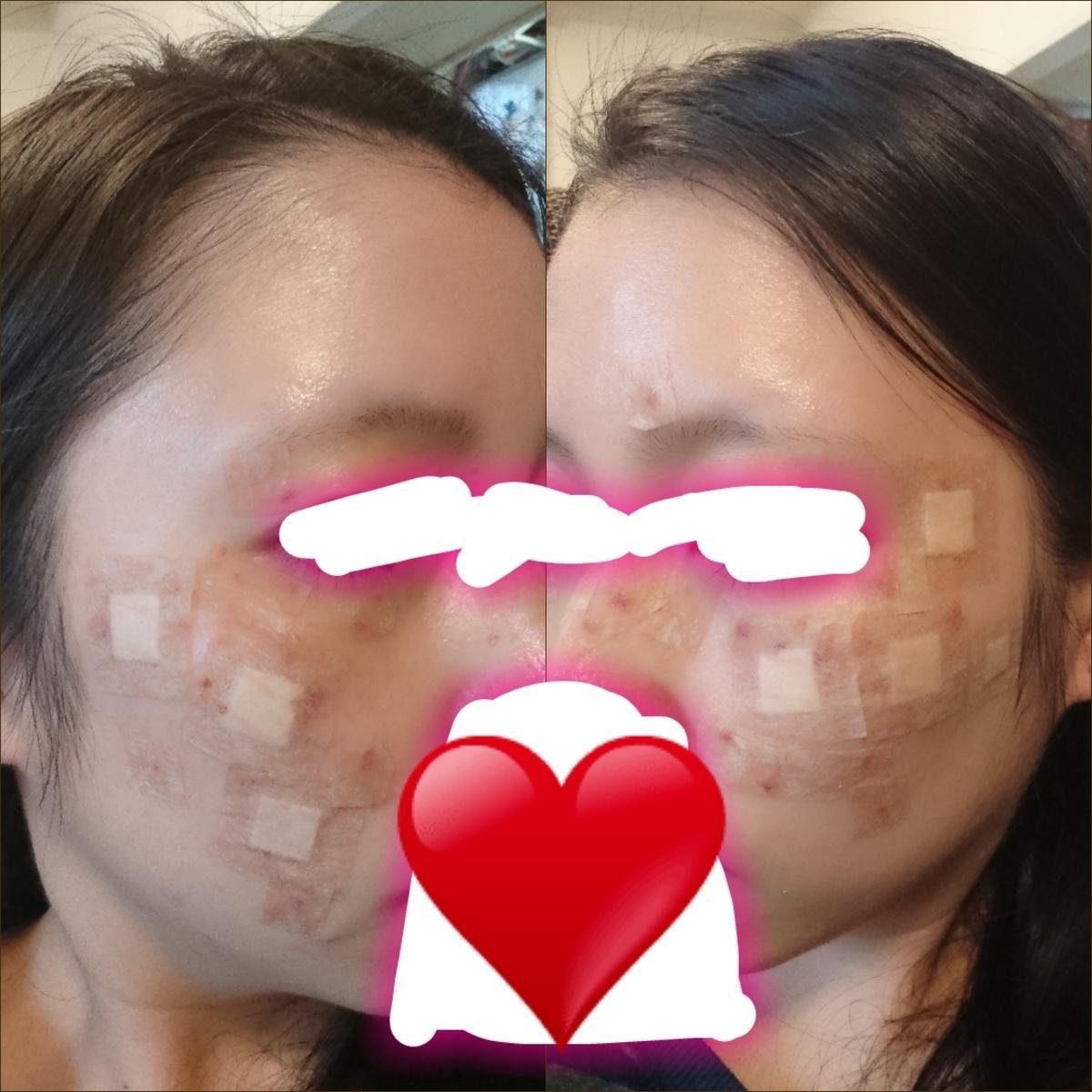 f:id:miityo_51:20191020112259j:plain