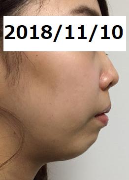 f:id:mikagex:20181208222436p:plain