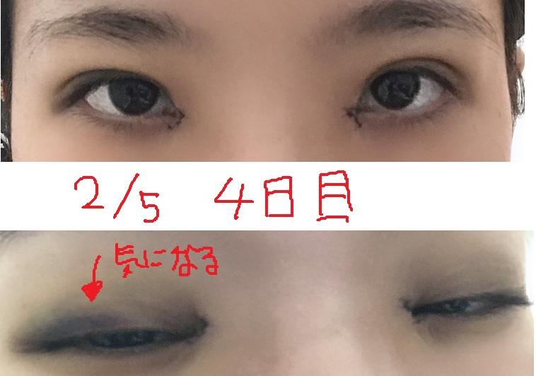 f:id:minnnataberuyo:20190211221949j:plain