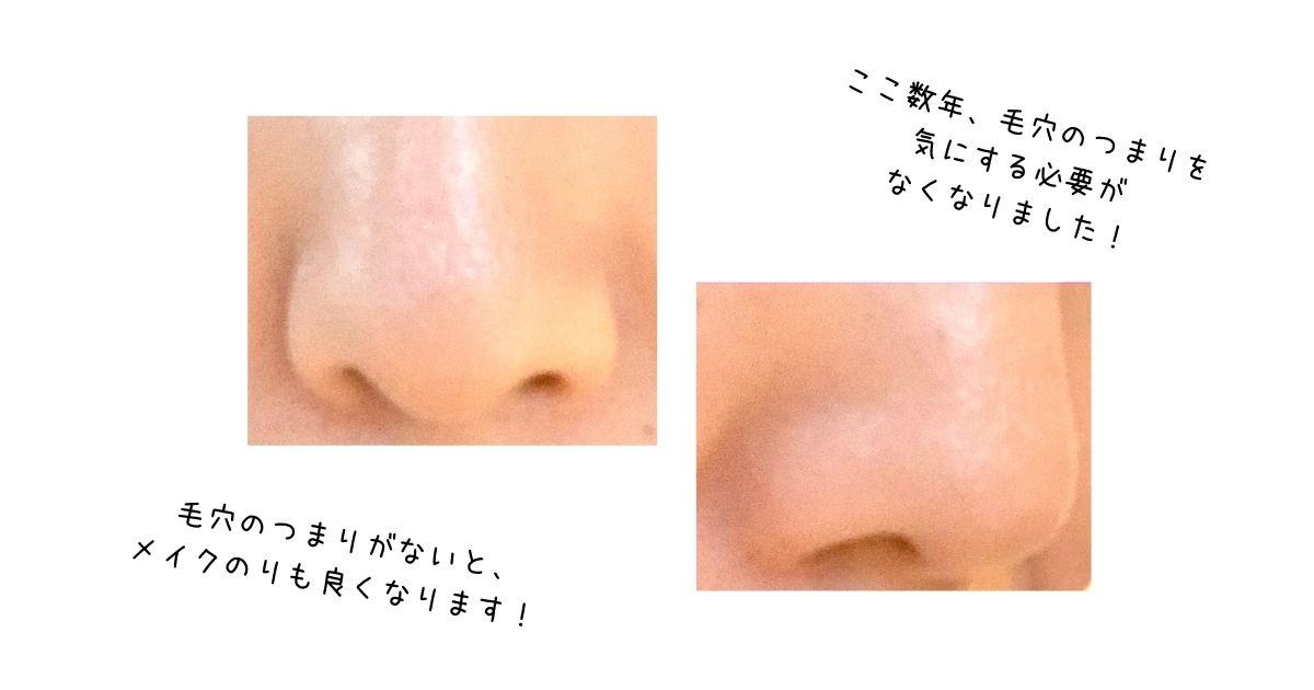 鼻の毛穴のアップ