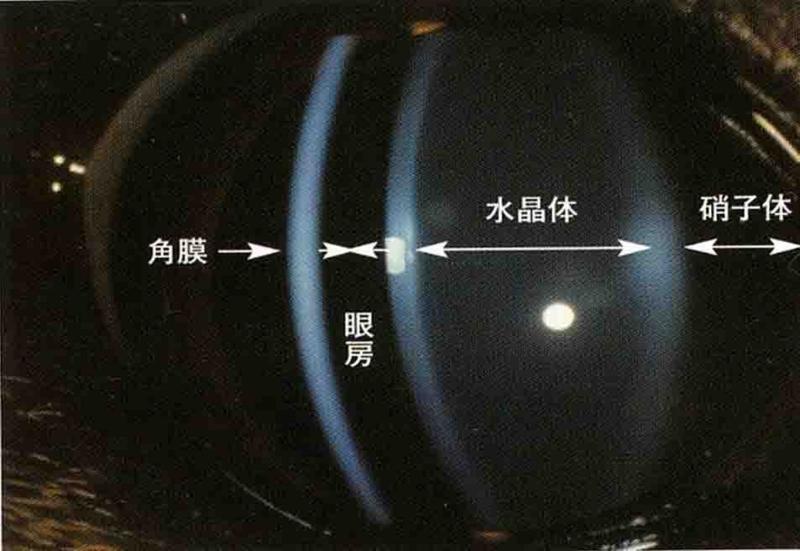 f:id:minvet2006:20110730172227j:image