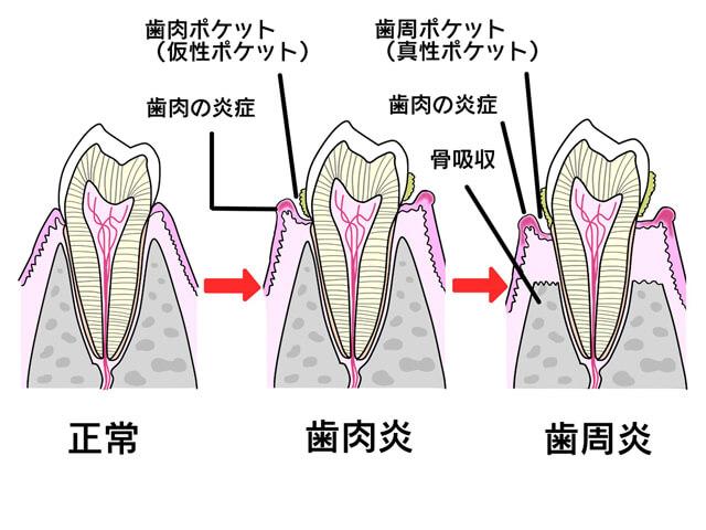 歯石取り 歯周病