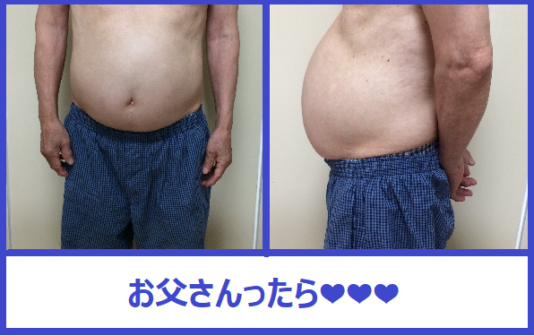 f:id:misumi-tomo:20190817212248p:plain