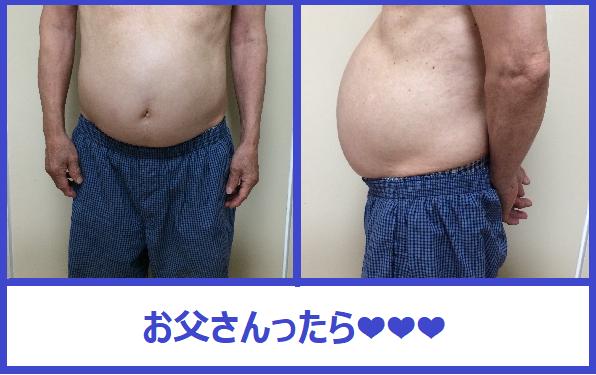 f:id:misumi-tomo:20191106140305p:plain