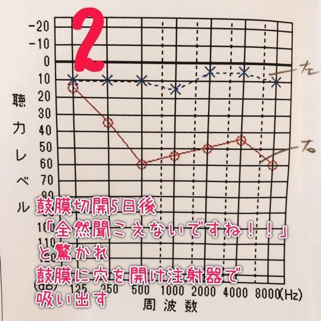 f:id:misumisu0722:20190112114201j:plain