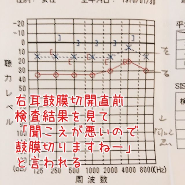 f:id:misumisu0722:20190113142449j:plain