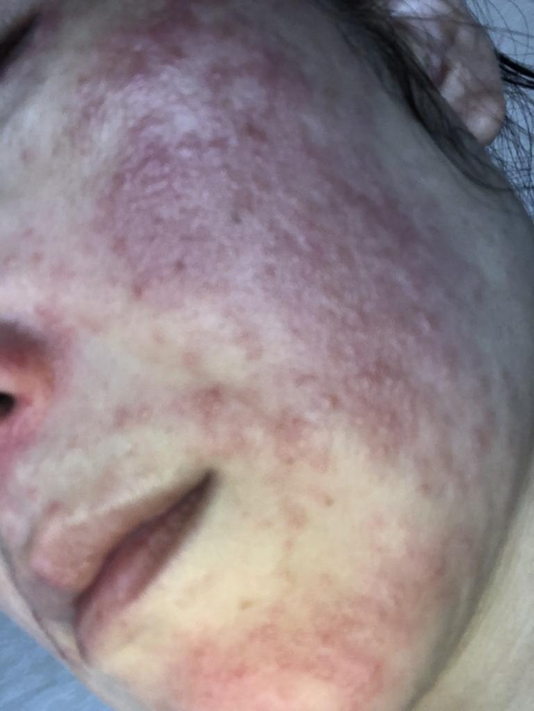 脂 漏 性 皮膚 炎 完治