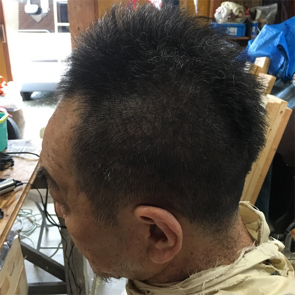 f:id:miwasugawara:20170704145142j:image