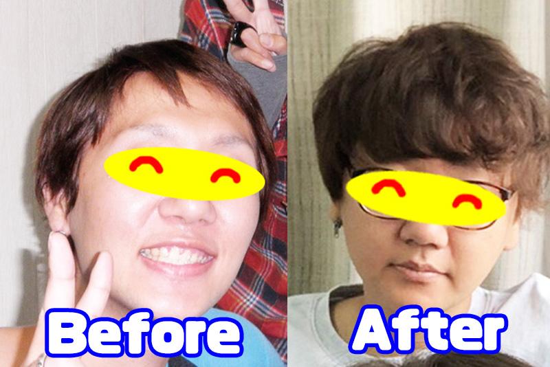 育毛Before after
