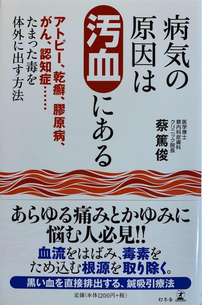 f:id:miyashita03nami08:20200426094648j:image