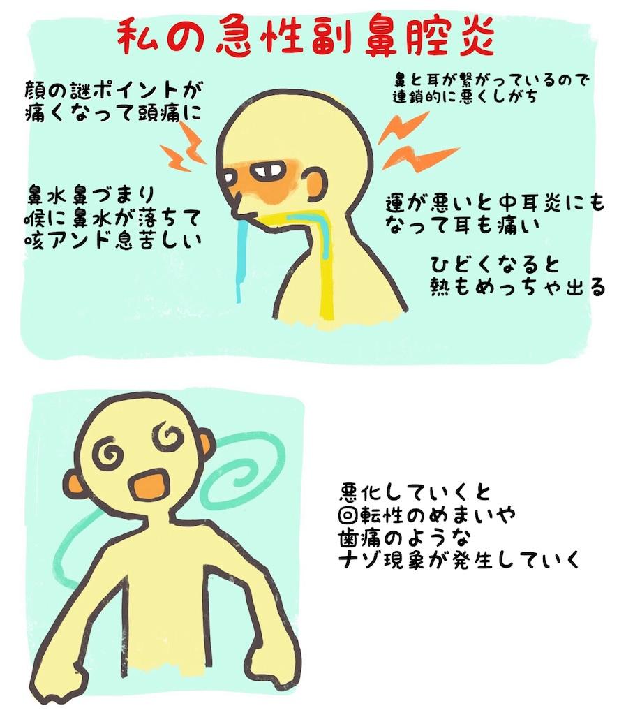 f:id:mizi:20170820234034j:image