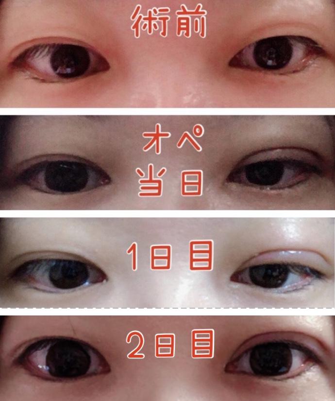 f:id:mizuharasaki:20191116103301j:plain