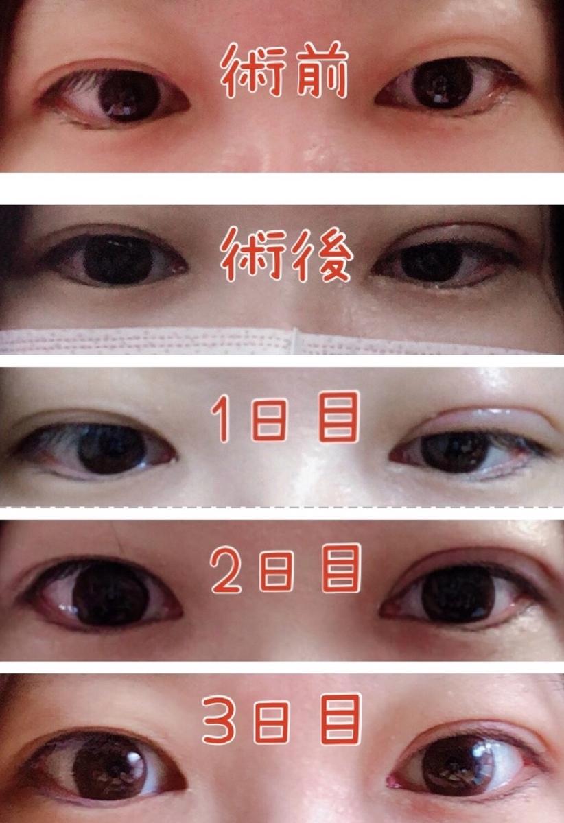 f:id:mizuharasaki:20191119131216j:plain