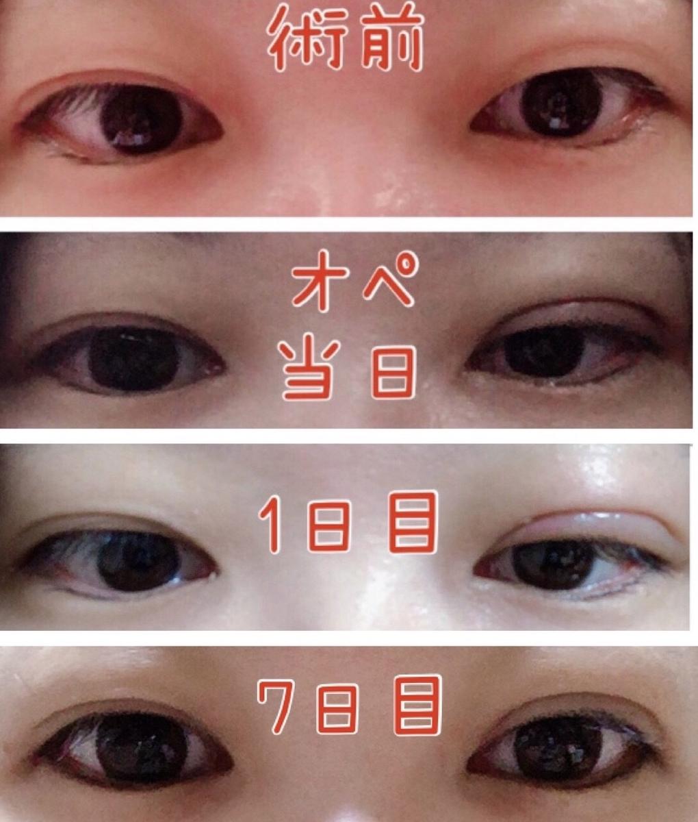 f:id:mizuharasaki:20191126095837j:plain