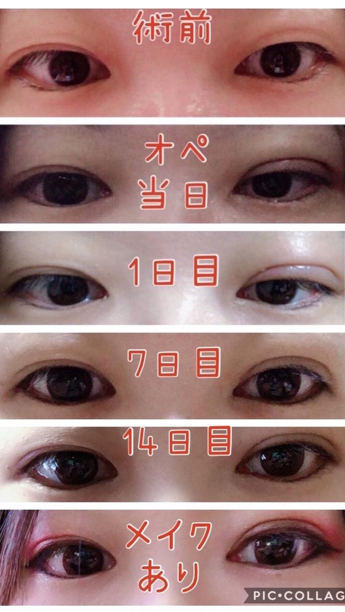 f:id:mizuharasaki:20191203103024j:plain