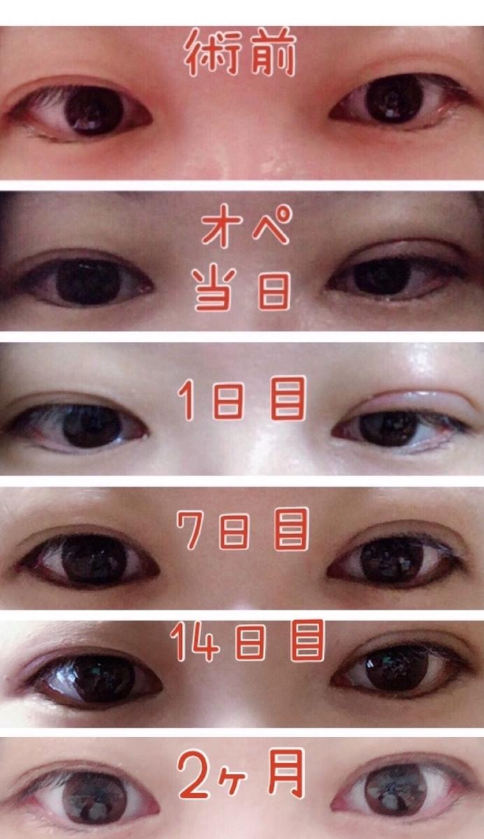 f:id:mizuharasaki:20200117130927j:plain