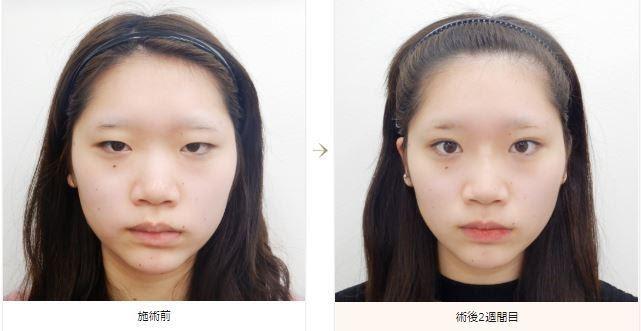 f:id:mizunomori-biyougeka:20180718161739j:plain