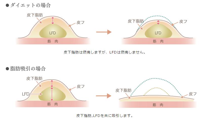 f:id:mizunomori-biyougeka:20151127174504p:plain