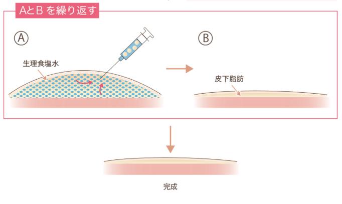 f:id:mizunomori-biyougeka:20151127175250p:plain
