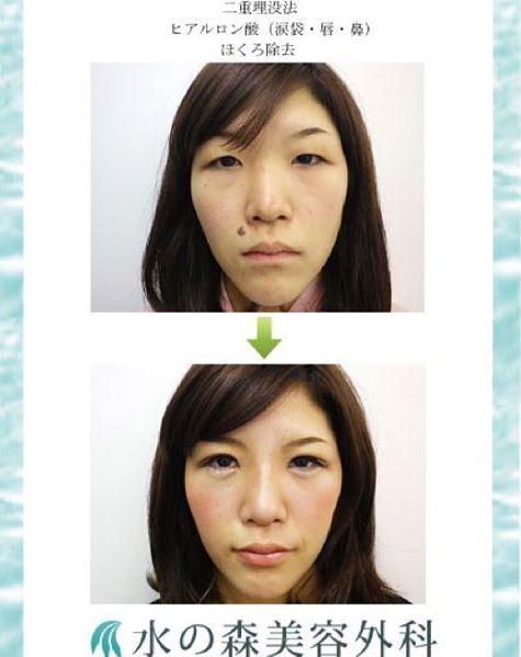 f:id:mizunomori-biyougeka:20160125114930j:plain