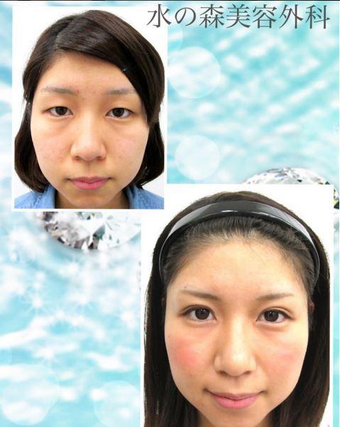 f:id:mizunomori-biyougeka:20160125115148j:plain