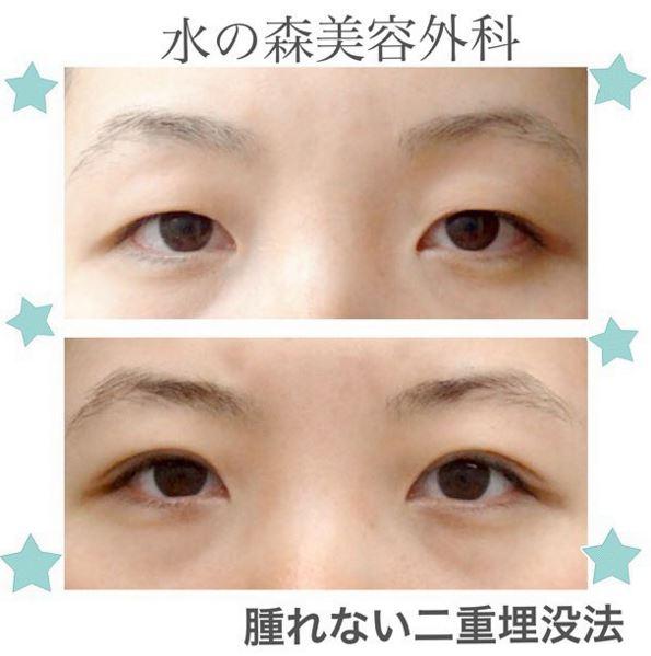 f:id:mizunomori-biyougeka:20160125115150j:plain