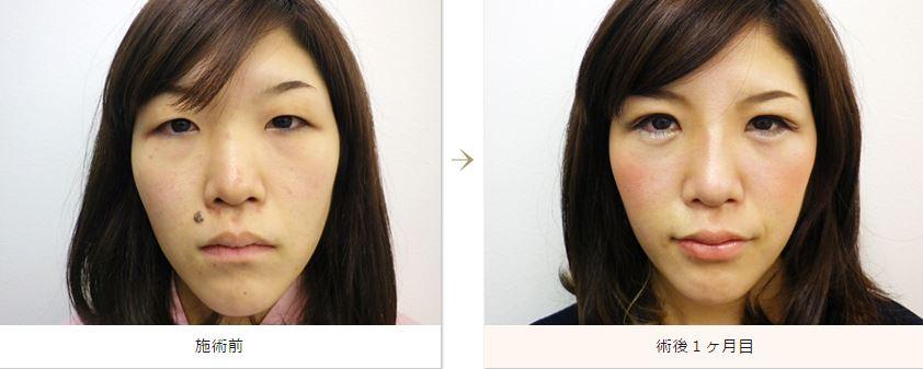 f:id:mizunomori-biyougeka:20160401104120j:plain