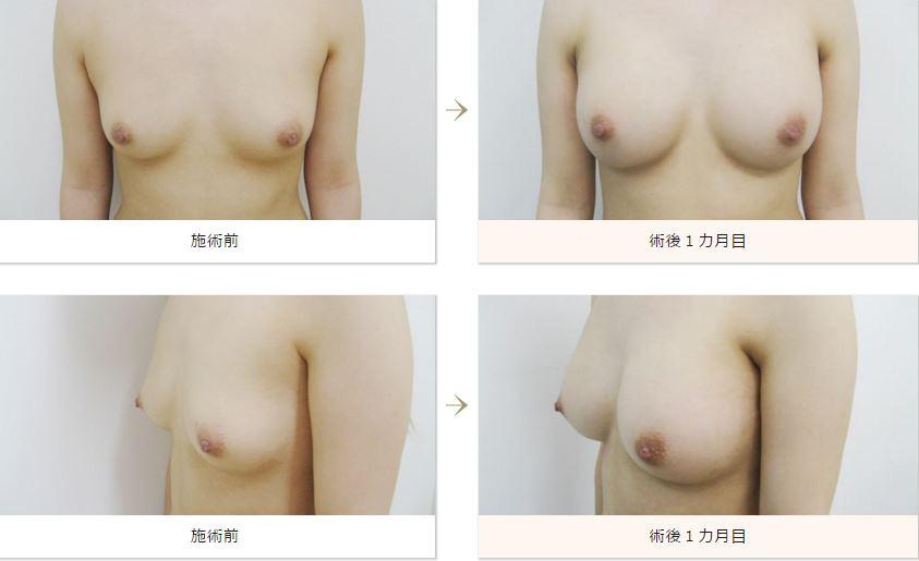f:id:mizunomori-biyougeka:20160401105258j:plain