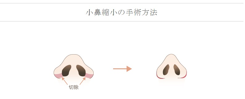 f:id:mizunomori-biyougeka:20160512131639j:plain
