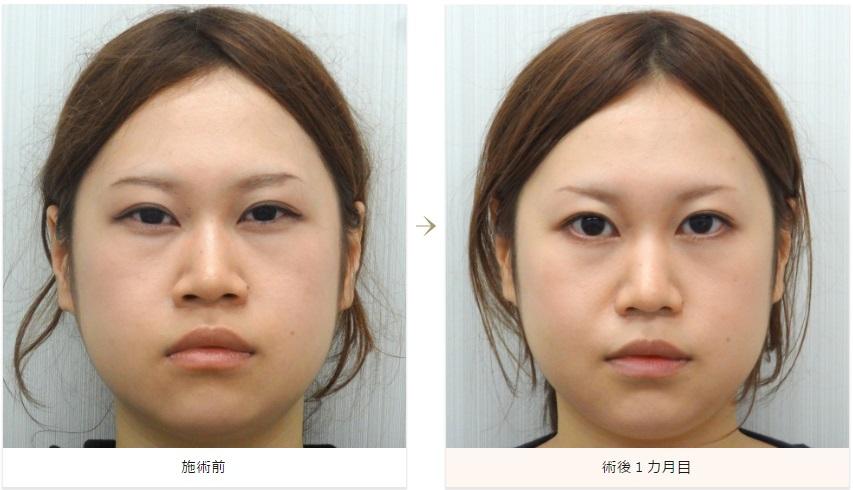 f:id:mizunomori-biyougeka:20160512132050j:plain