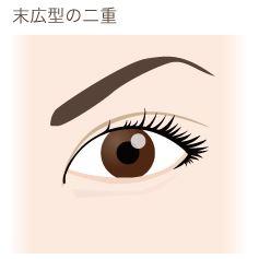 f:id:mizunomori-biyougeka:20160617100920j:plain