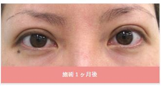 f:id:mizunomori-biyougeka:20160706105258j:plain