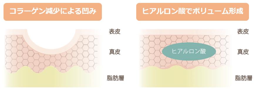 f:id:mizunomori-biyougeka:20160810170015p:plain