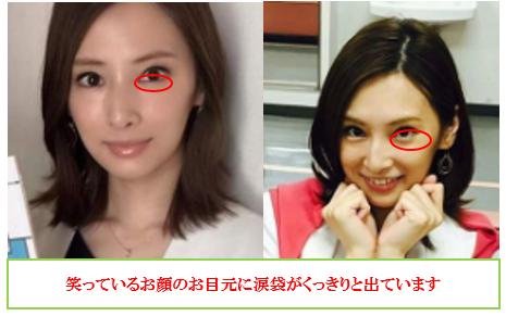 f:id:mizunomori-biyougeka:20160909125705p:plain