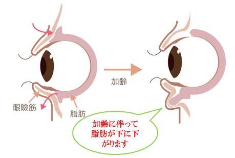 f:id:mizunomori-biyougeka:20160909142443j:plain
